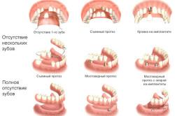 Виды зубных съемных протезов